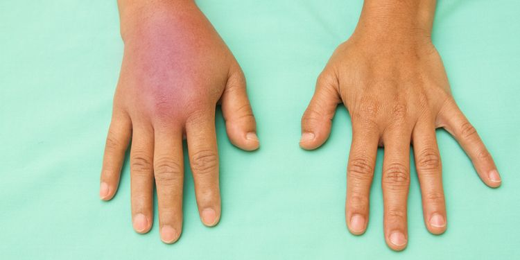 Photo of a swollen inflammed hands