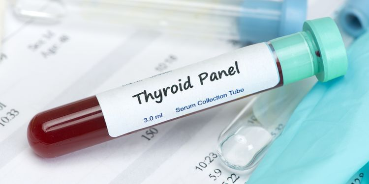 Photo of blood tube saying Thyroid panel on a label