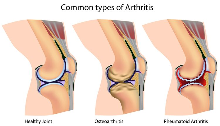 Illustration of joints with arthritis