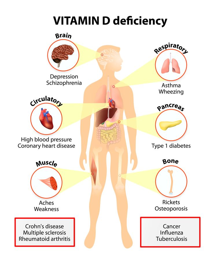Illustration of human body with vitamin D deficiency