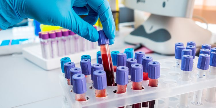 Photo of blood testing tubes in lab