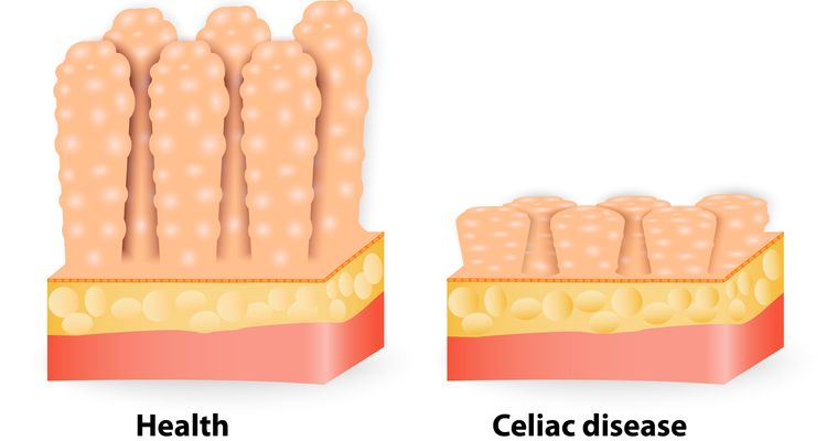 Illustration of a healthy and celiac disease affected villi