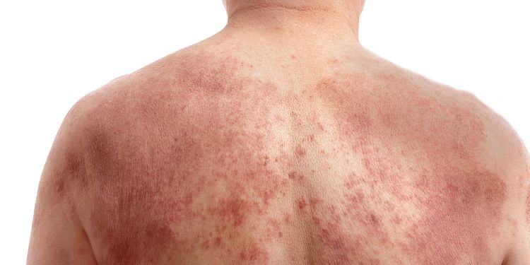 Photo of a naked human back with dermatitis rash