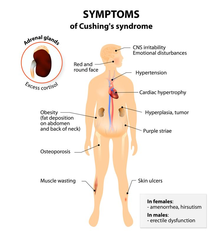 Illustration of symptoms of Cushing's syndrome