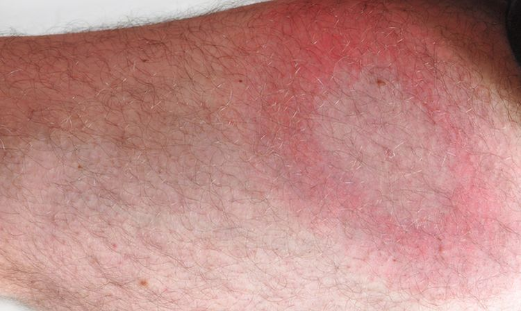 Photo of a bull's-eye rash on a leg- symptom of lyme disease