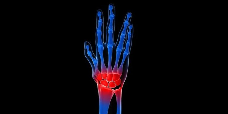 Illustration of a pain in the wrist