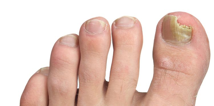Photo of a fungal infection on a toe