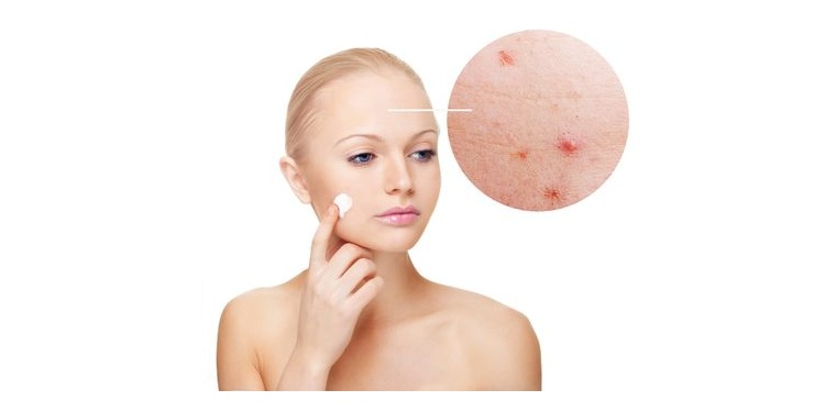 Photo of a girl using acne cream