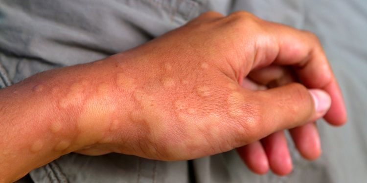Photo of a hand showing symptoms of urticaria