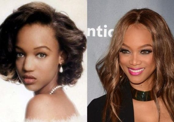 Tyra Banks Before And After Rhinoplasty
