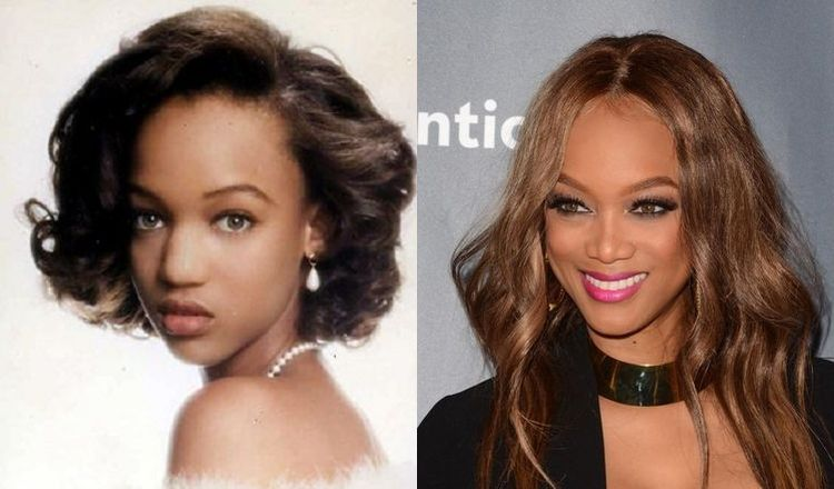Photo of Tyra Banks Before And After Rhinoplasty