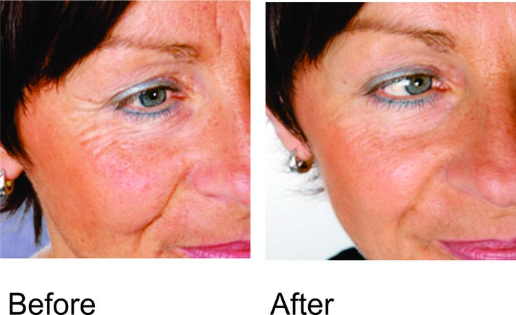 Image of woman after and before PBM